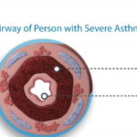 Advances in the Treatment of Asthma: Bronchial Thermoplasty, Part 3