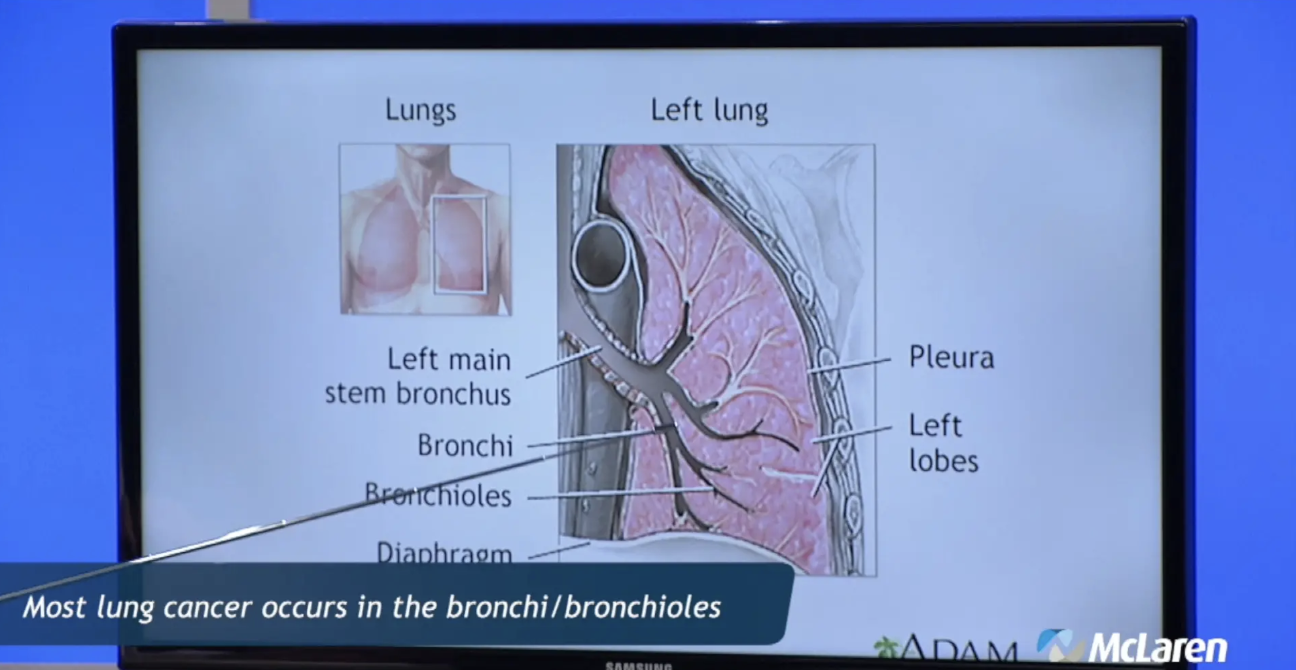 Advanced Treatment Options for Lung Cancer, Part 1